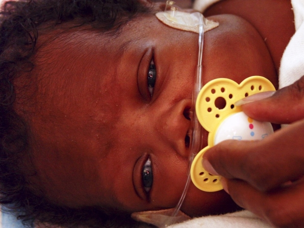 Baby with breathing tubes in ICU